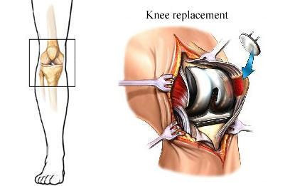 total-knee-replacement-tkr